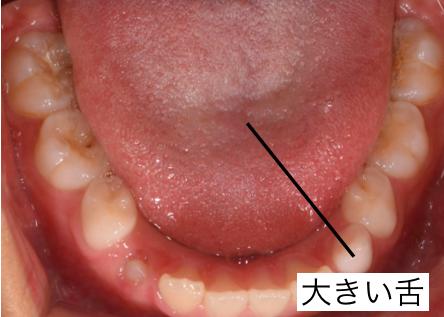 口を閉じた時に舌が両サイドの歯に当たって痛いで …