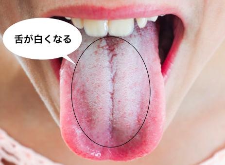 舌が白い人は必見!舌苔の原因と...